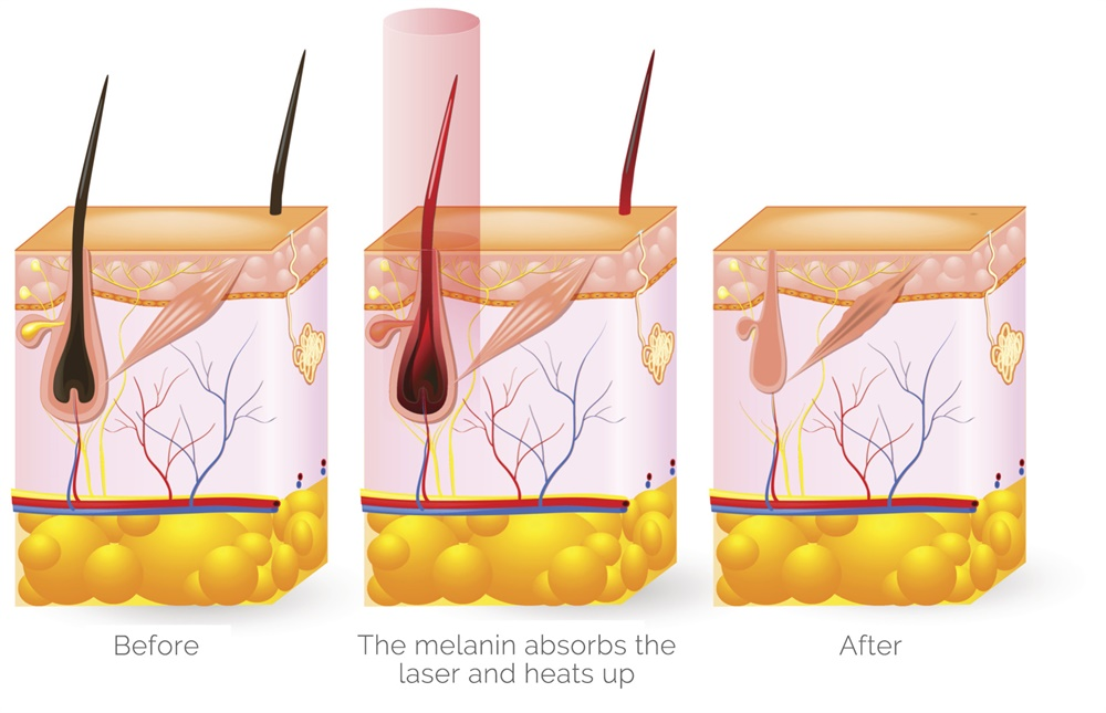 Diode Laser Hair Removal - How it Works