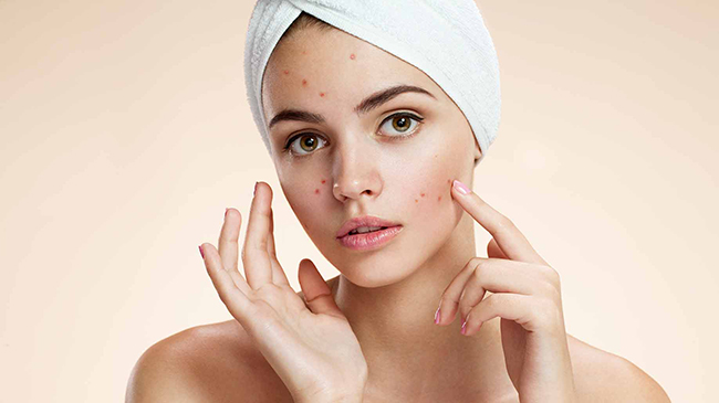 How to prevent acne ?
