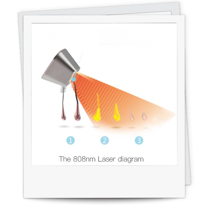 Laseway Ice ™ - Haarverwijdering met diodelaser