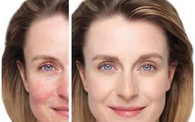 Suggerimento efficace per la cura della pelle sensibile