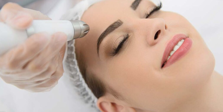 facial laser treatments