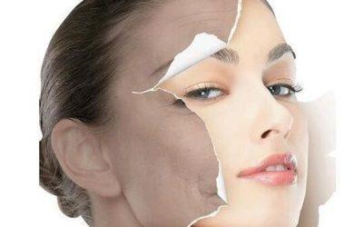 Perché l'IPL è utile nel ringiovanimento della pelle?