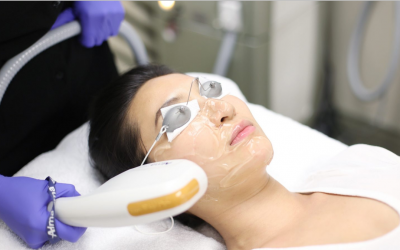 Your Skin Suitable For IPL Whitening?