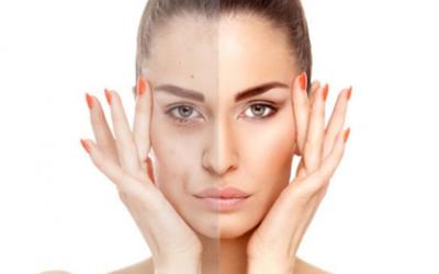 Cos'è lo sbiancamento della pelle?