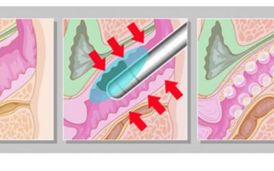 Come funziona il ringiovanimento vaginale?