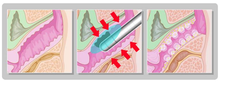 HIFU Rejuvenescimento Vaginal